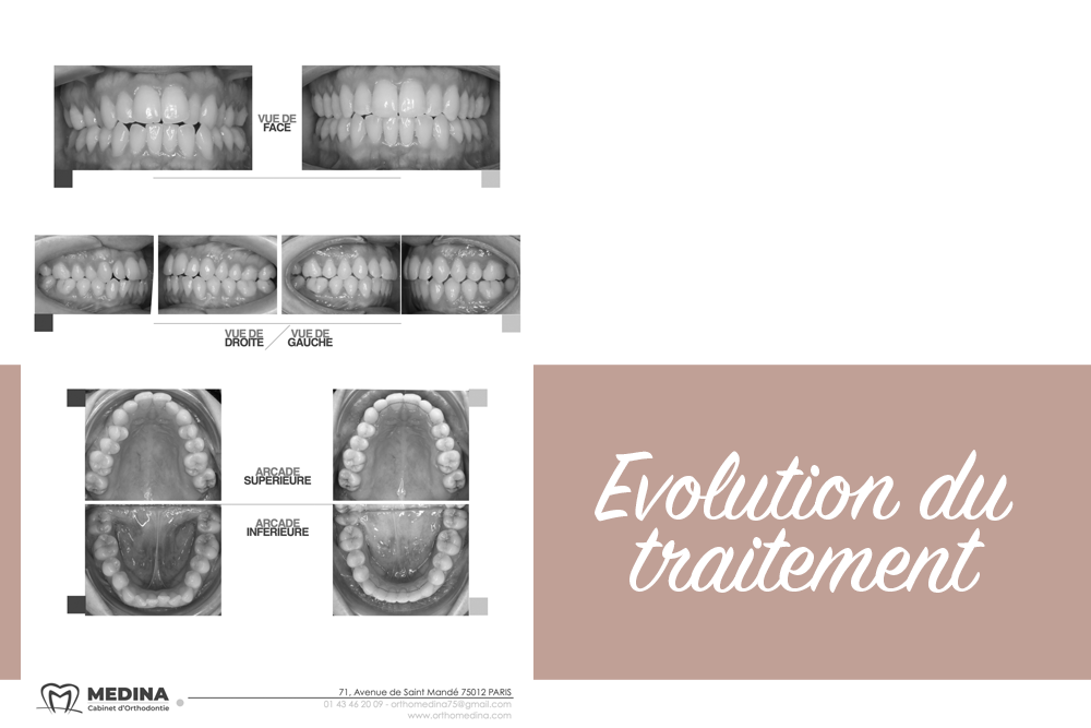 Evolution du traitement Invisalign
